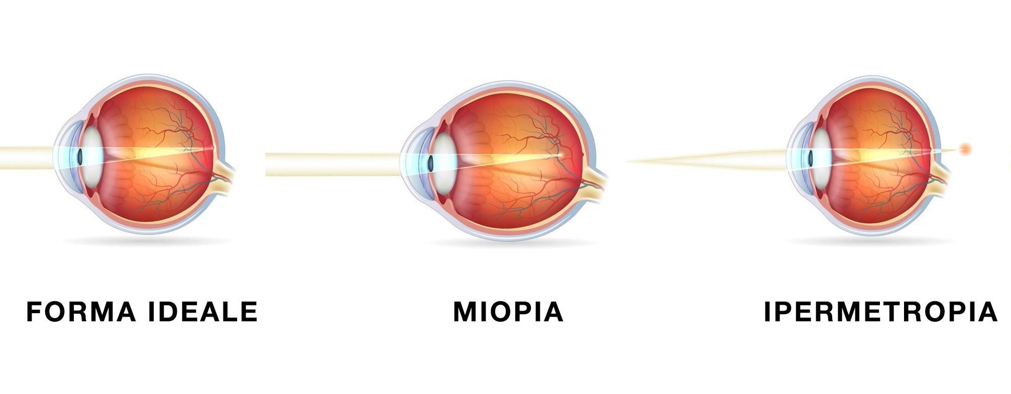 occhio-miope